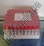 Vacutainer Clot Activator 5ml ( Red Cap )